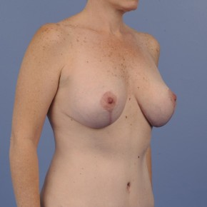 After Photo - Mommy Makeover - Case #16912 - Oblique View