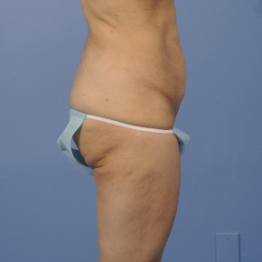 Before Photo - Mommy Makeover - Case #16913 - Posterior Oblique View