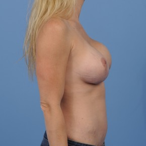 Before Photo - Breast Revision - Case #16914 - Lateral View