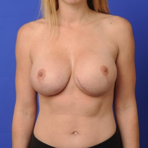 After Photo - Breast Revision - Case #16914 - Frontal View