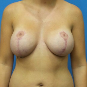 Before Photo - Breast Lift - Case #16926 - Breast Lift with Mesh/Liposuction to Abdomen - 3 months post-op - Frontal View