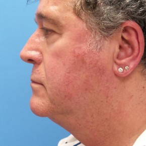 Before Photo - Facelift - Case #16949 - Facelift/Upper Blepharoplasty/Browlift - 1 year post-op - Lateral View