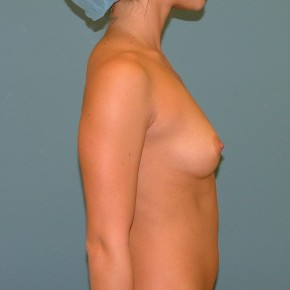 Before Photo - Breast Augmentation - Case #16951 - Submuscular BA with 300cc NS implants filled to 320cc. Inframammary approach. - Lateral View