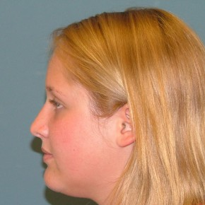 After Photo - Nose Surgery - Case #16952 - Cosmetic Rhinoplasty closed approach. - Lateral View