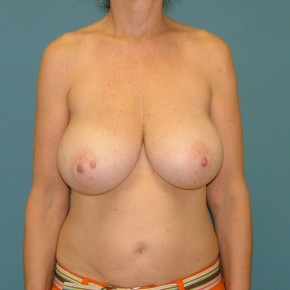 Before Photo - Breast Reduction - Case #16953 - Breast Reduction inferior pedicle - Frontal View