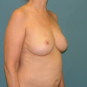 After Photo - Breast Reduction - Case #16953 - Breast Reduction inferior pedicle - Oblique View