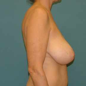 Before Photo - Breast Reduction - Case #16953 - Breast Reduction inferior pedicle - Lateral View