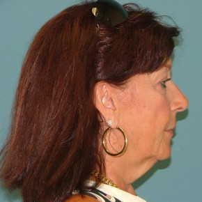 Before Photo - Facelift - Case #16954 - Facelift+eyelid surgery+forehead lift - Lateral View