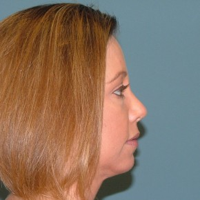After Photo - Nose Surgery - Case #16956 - Rhinoplasty+ chin augmentation with silicone implant - Lateral View