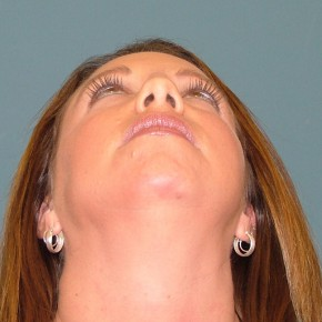 Before Photo - Nose Surgery - Case #16956 - Rhinoplasty+ chin augmentation with silicone implant - Worm's Eye View
