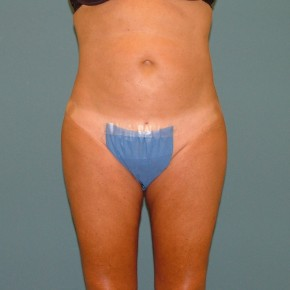 After Photo - Liposuction - Case #16958 - Liposuction abdomen,flanks, hip rolls, medial & lateral thighs. - Frontal View