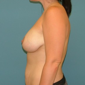 After Photo - Breast Lift - Case #17049 - Mastopexy+ Breast Augmentation - Lateral View