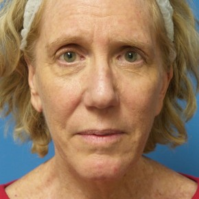 Before Photo - Facelift - Case #17063 - Facelift/Browlift/Laser Resurfacing to Full Face - 2 months post-op - Frontal View