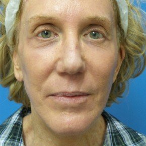 After Photo - Facelift - Case #17063 - Facelift/Browlift/Laser Resurfacing to Full Face - 2 months post-op - Frontal View