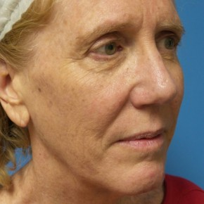 Before Photo - Facelift - Case #17063 - Facelift/Browlift/Laser Resurfacing to Full Face - 2 months post-op - Oblique View