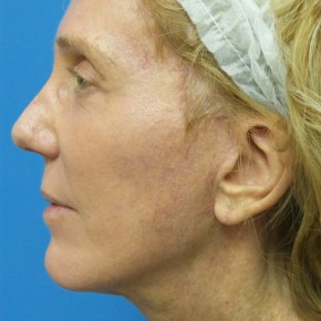 After Photo - Facelift - Case #17063 - Facelift/Browlift/Laser Resurfacing to Full Face - 2 months post-op - Lateral View