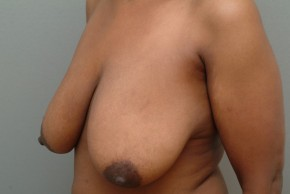 Before Photo - Breast Lift - Case #17111 - Breast Lift (Mastopexy) - Posterior Oblique View