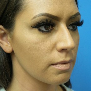 Before Photo - Nose Surgery - Case #17155 - Rhinoplasty - 3 months post-op - Oblique View