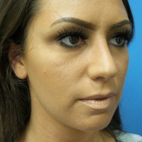 After Photo - Nose Surgery - Case #17155 - Rhinoplasty - 3 months post-op - Oblique View