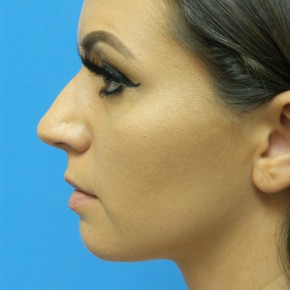 Before Photo - Nose Surgery - Case #17155 - Rhinoplasty - 3 months post-op - Lateral View