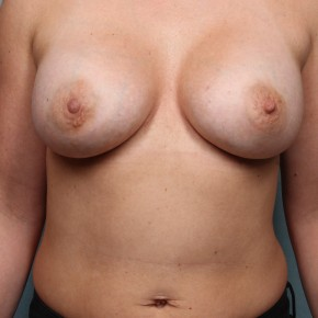 After Photo - Breast Augmentation - Case #17168 - Frontal View