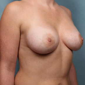 After Photo - Breast Augmentation - Case #17168 - Oblique View