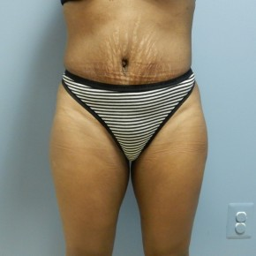 After Photo - Tummy Tuck - Case #17188 - Frontal View