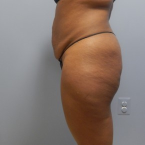 Before Photo - Tummy Tuck - Case #17188 - Lateral View