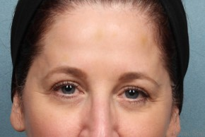 After Photo - Botulinum Toxin - Case #17189 - 55-64 year old woman treated with Botox - Frontal View