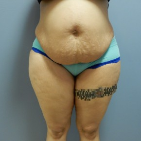 Before Photo - Tummy Tuck - Case #17191 - Frontal View