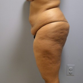 Before Photo - Tummy Tuck - Case #17193 - Lateral View