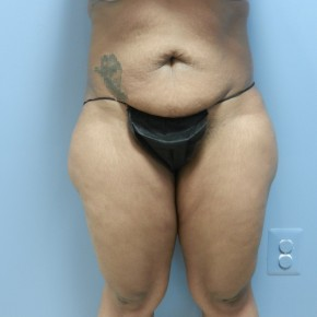 Before Photo - Tummy Tuck - Case #17194 - Frontal View