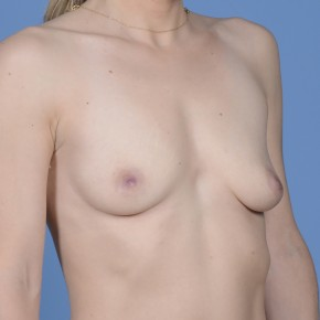 Before Photo - Breast Augmentation - Case #17210 - Breast Augmentation with Shaped Silicone Implants - Oblique View