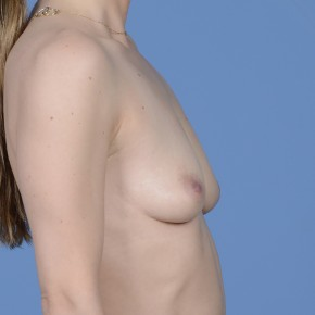 Before Photo - Breast Augmentation - Case #17210 - Breast Augmentation with Shaped Silicone Implants - Lateral View