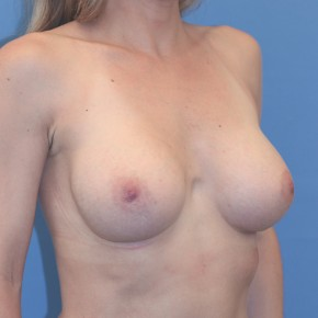 After Photo - Breast Augmentation - Case #17210 - Breast Augmentation with Shaped Silicone Implants - Oblique View