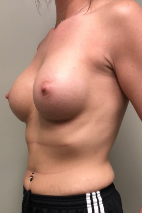 After Photo - Breast Augmentation - Case #17216 - Submuscular Breast Augmentation with Soft Touch Round Cohesive Silicone Implants - Oblique View