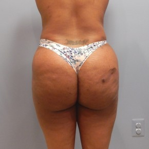 After Photo - Liposuction - Case #17223 - Posterior Oblique View