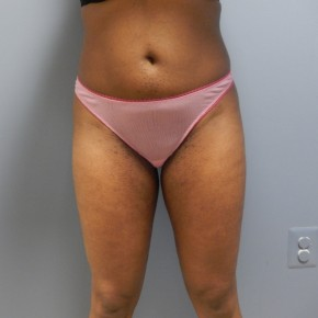 After Photo - Liposuction - Case #17232 - Frontal View