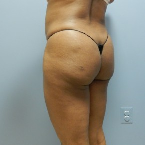 After Photo - Liposuction - Case #17233 - Posterior Oblique View