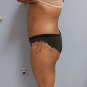 After Photo - Liposuction - Case #17234 - Lateral View