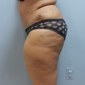 After Photo - Tummy Tuck - Case #17235 - Lateral View