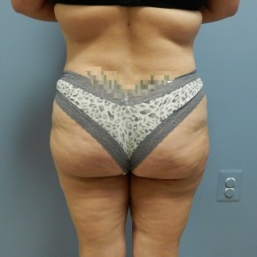 After Photo - Liposuction - Case #17236 - Posterior View