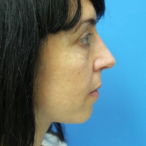 After Photo - Nose Surgery - Case #17239 - 40 year old woman treated with Nose Surgery/Septoplasty/Turbinectomy - Lateral View