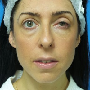 Before Photo - Nose Surgery - Case #17239 - 40 year old woman treated with Nose Surgery/Septoplasty/Turbinectomy - Frontal View