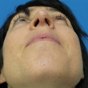 After Photo - Nose Surgery - Case #17239 - 40 year old woman treated with Nose Surgery/Septoplasty/Turbinectomy - Worm's Eye View