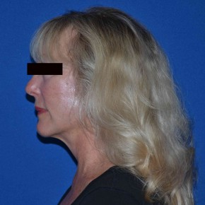 After Photo - Facelift - Case #17175 - Mini Facelift - Posterior View