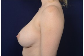 After Photo - Breast Augmentation - Case #18229 - Lateral View