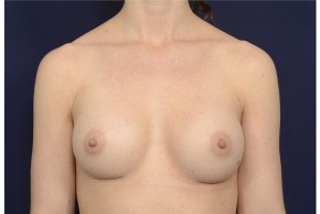 After Photo - Breast Augmentation - Case #18231 - Frontal View