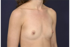 Before Photo - Breast Augmentation - Case #18231 - Oblique View