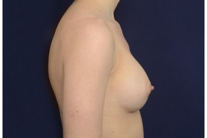 After Photo - Breast Augmentation - Case #18231 - Lateral View